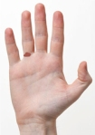 800px-Human-Hands-Front-BackMay2613wiki-crop-wound